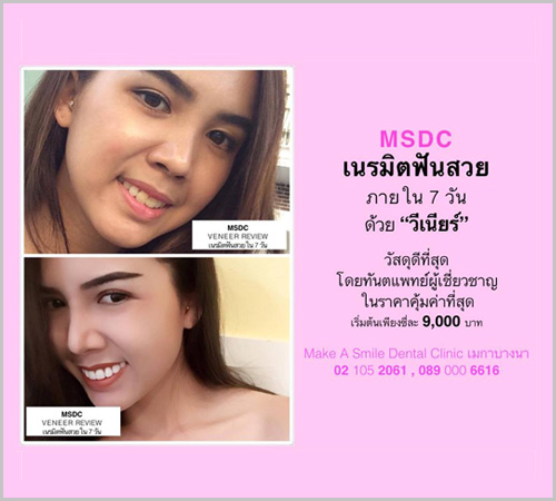 MSDC – Megabangna is now offering a special promotion for patients who want to transform their smiles.