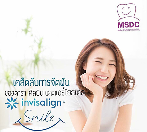 Invisalign Promotion –  Enjoy more than 40,000 baht discount !!